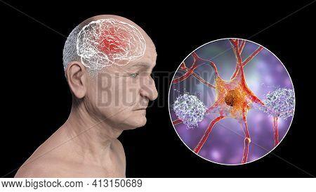 Dementia, Conceptual 3d Illustration Showing An Elderly Person With Progressive Impairments Of Brain