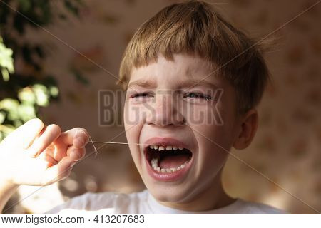 Crying 6 Years Boy Who Is Trying To Tear Up His Milk Tooth By Thread. Feeling Of Pain And Fear.