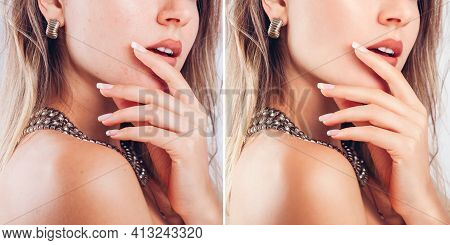 Before And After Retouching Nail Art And Design In Editor. Beauty Fashion Portraits Of Woman With Ma