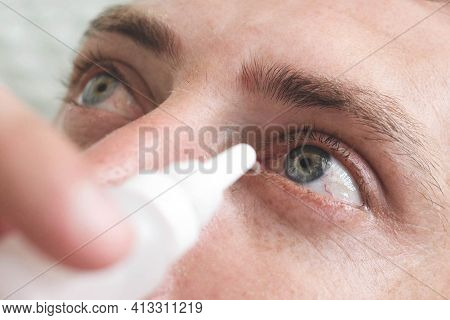Man Drops Eye Drops Install Lenses.preservation And Solution Vision Problems. Eye Diseases Are Recog