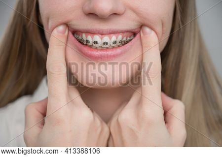 Close-up Of A Young Womans Smile With Metal Braces On Her Teeth. Correction Of Bite