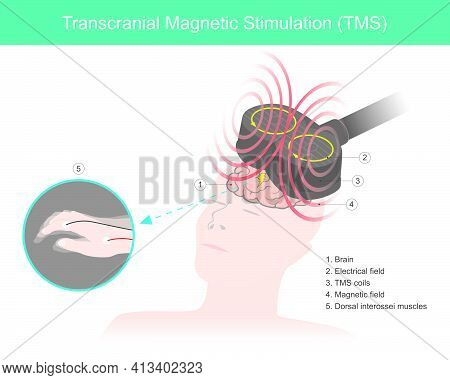 Transcranial Magnetic Stimulation (tms). The Brain Stimulation In Which A Changing Magnetic Field Is