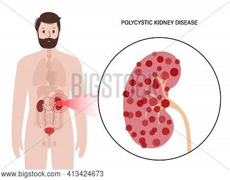 Polycystic In Human Kidney. Adult Man Has Pain And Inflammation In The Urinary System. Inflammation