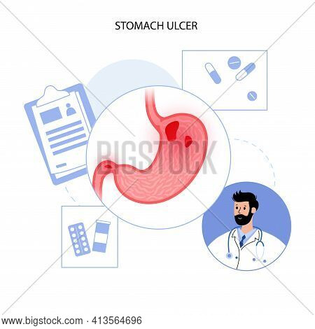 Ulcer, Pain And Inflammation In The Stomach. Medical Appointment With A Doctor. Disease In The Diges