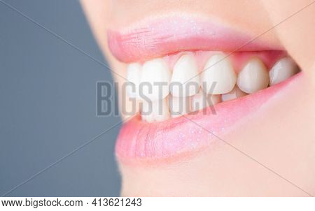 Perfect Healthy Teeth. Closeup Shot Of Womans Toothy Smile. Perfect Healthy Teeth Smile Woman. Teeth