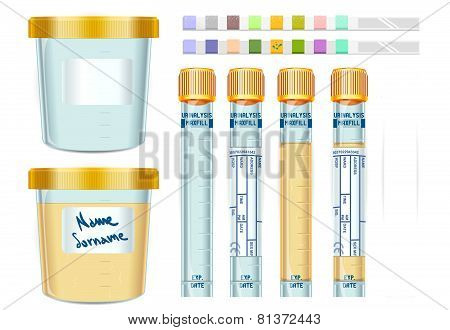 Urinalysis Yellow Cap Tubes Set, Empty, Filled, Frozen And Dipstick