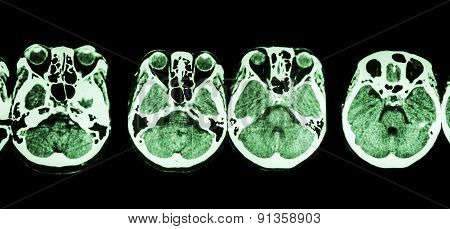 CT scan of brain and base of skull ( show structure of eye , ethmoid sinus , cerebellum , cerebrum , etc )