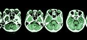 CT scan of brain and base of skull ( show structure of eye , ethmoid sinus , cerebellum , cerebrum , etc ) poster