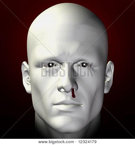 Bleeding Nose