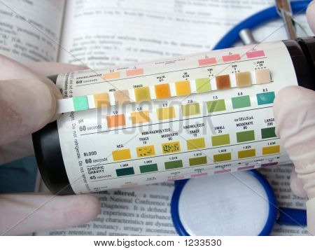 Urine Blood Test
