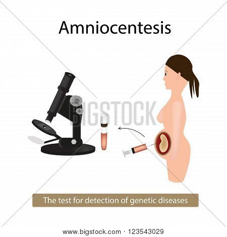 Amniocentesis. Analysis of amniotic fluid. Pregnant woman. Genetic diseases. Vector illustration on isolated background.