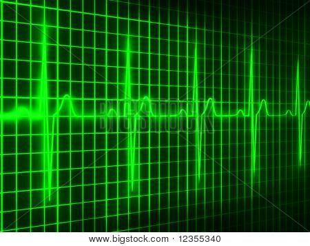 cardiograma