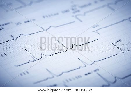 Detail of an electrocardiogram