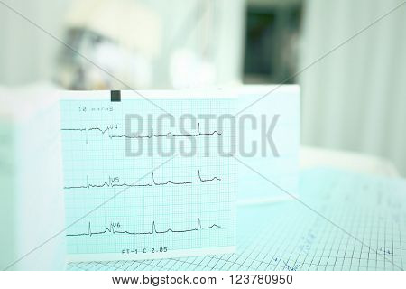 ECG on the doctors table with medical documentation