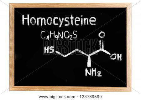Blackboard with the chemical formula of Homocysteine