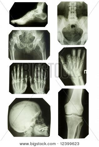 x-ray collection