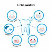 dental problem. Tooth disease: sensitive teeth caries calculus gingivitis periodontitis and bad breath poster