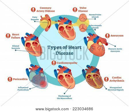 Types of heart disease collection, vector illustration diagram. Educational medical information.