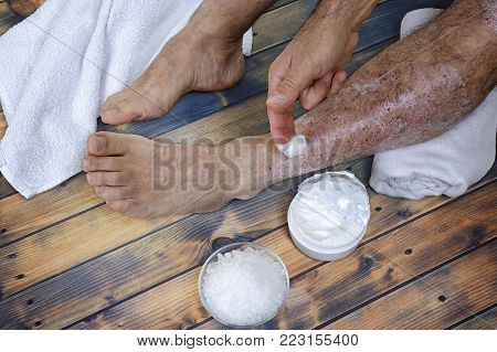 A person suffering from chronic psoriasis relaxes during treatment with salts and creams of inflammation on an antique wooden table.