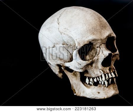 Fiberglass human skull posed at an angle on a black background.
