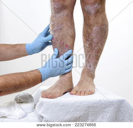 The dermatologist with his hands protected by gloves studies the inflammation in the legs of an adult man with psoriasis