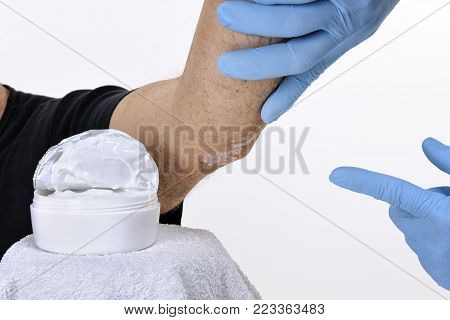 The dermatologist with gloves protected hands studies inflammation in the left elbow of an adult man with psoriasis poster