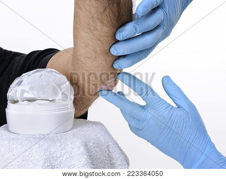 The dermatologist with gloves protected hands studies inflammation in the left elbow of an adult man with psoriasis
