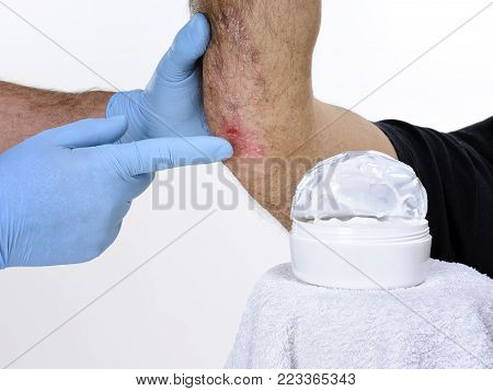 The glove-protected dermatologist studies inflammation in the right elbow of an adult man with psoriasis