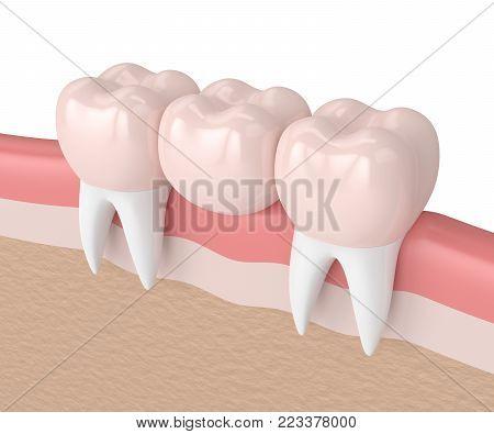 3D Render Of Dental Bridge With Dental Crowns