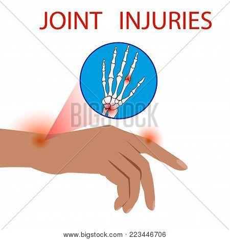 Finger Dislocation human medical  organ vector illustration.