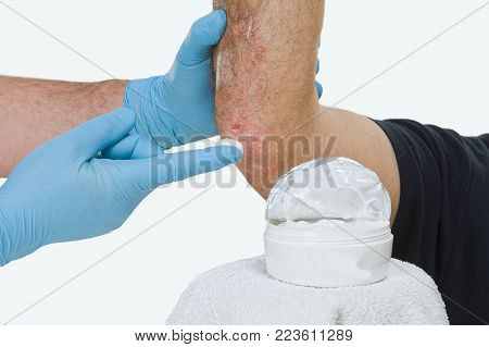 Psoriasis is a chronic inflammatory disease of the skin. Dermatologist visits the patient and proposes a moisturizer.