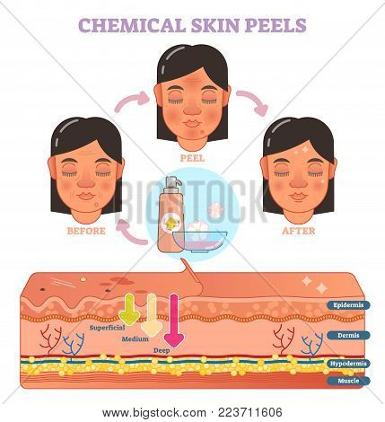 Chemical skin peels vector illustration diagram with 3 steps and skin layer scheme.