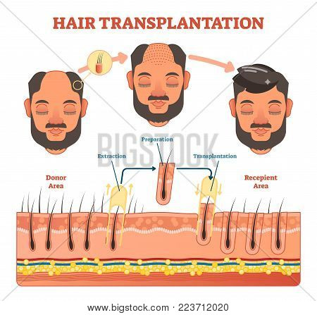 Hair Transplantation procedure diagram with steps, vector illustration scheme.