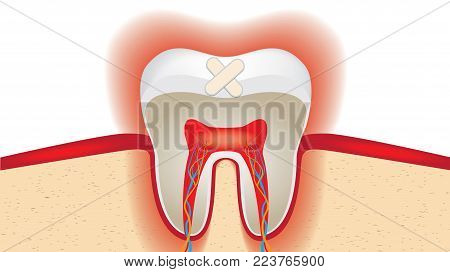 Crop of molar tooth adhesive plaster. Isolated on white background. Vector illustration.