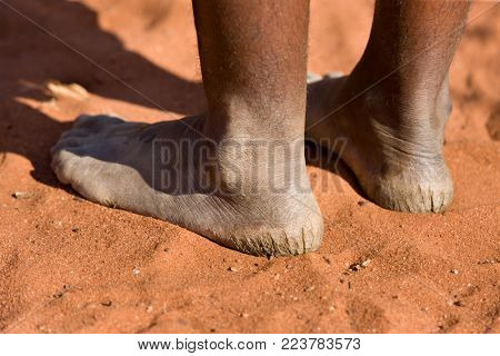 Kalahari Desert bushman woman with cracked heels