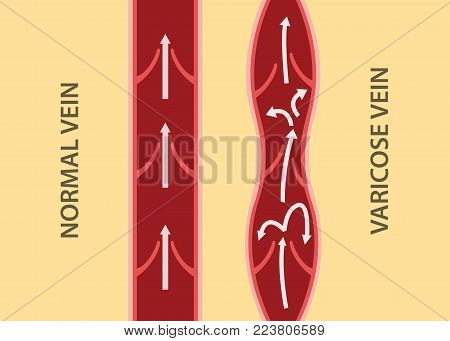comparison compare between normal vein and varicose vein in vertical alignment vertial graphic illustration