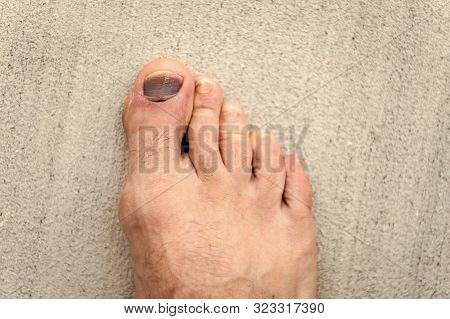 Nail Hematoma. Take Care Of Your Feet. Pedicure And Podiatry. Treatment Of Bruise And Fracture. Medi