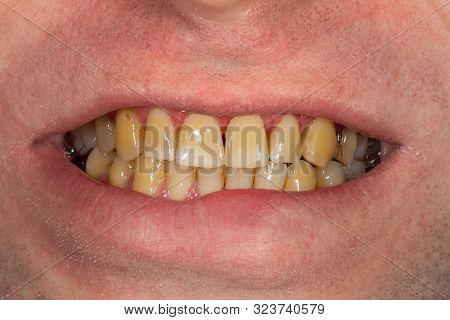 Smoking, Plaque On Teeth    Human Teeth After Smoking. Brown Resinous Plaque On Teeth Close-up. Smok