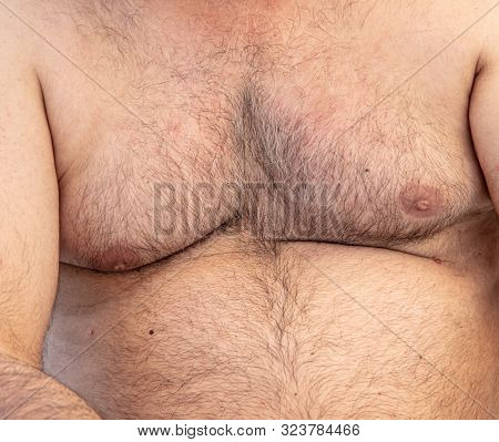 Hair On The Chest And Abdomen In A Man.