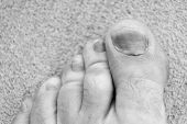 toe injury. bruise and trauma treatment. medical intervention. panaritium. uncomfortable shoes. nail fungus. healthy feet. finger hematoma desease. Pedicure podiatry. Treatment of bruise and fracture. poster