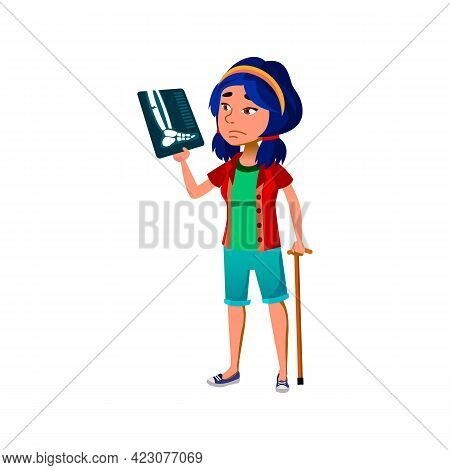 Illness Girl With Stick Looking On Leg X-ray Cartoon Vector. Illness Girl With Stick Looking On Leg
