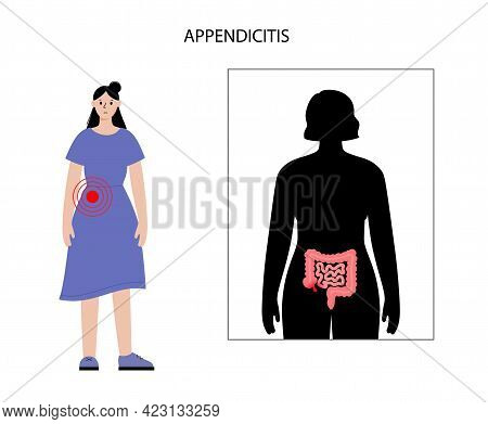 Inflamed Appendix In Human Body. Appendicitis And Pain In Intestine. Abdominal Inflammation And Bell