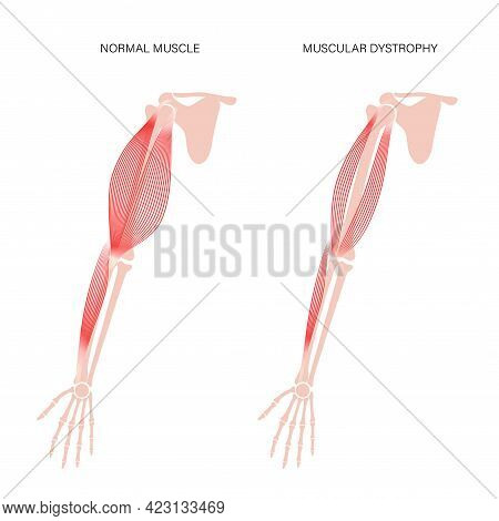 Muscular Dystrophy Concept. Disease In Human Arm Muscles. Muscular System And Bones In Male Silhouet