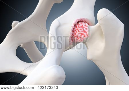 Canine Arthritis and Osteoarthritis joint inflammation, deterioration of joint in dogs, 3d illustration