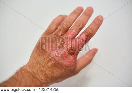 New Skin On The Hand After A Burn, Healing Burn On The Body