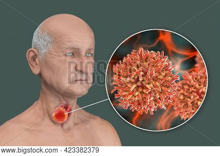 Thyroid Cancer. 3d Illustration Showing Thyroid Gland With Tumor Inside Human Body And Closeup View