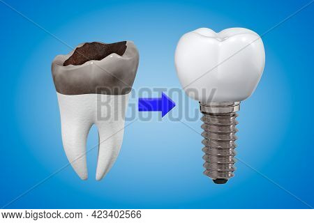 The Concept Of Replacing A Damaged Tooth With An Implant. Carious Tooth And Implant With A Crown. De