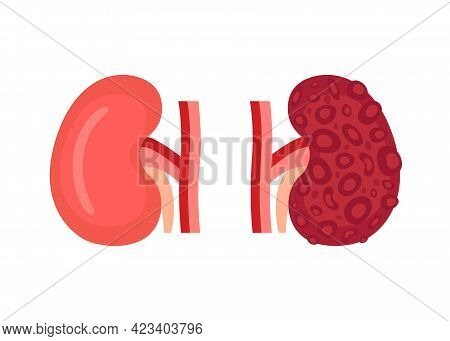 Healthy Kidney And Unhealthy Disease Kidney With Polycystic. Check Health Of Renal Organ. Internal O