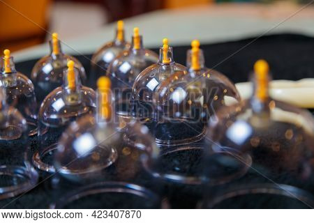 Vacuum Vessels For The Curative Procedure Of Hijama Bloodletting. Bloodletting, Phlebotomy, Sucking