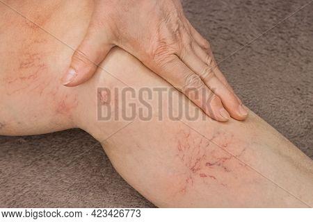 An Elderly Woman's Hand Touches Her Sick Leg With Vein Thrombosis, Varicose Veins.